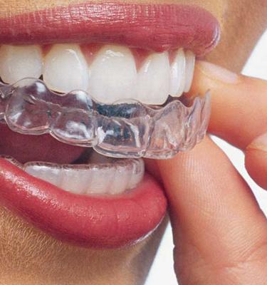 Invisalign® Teeth Straightening, Zen Clinic, Tollgate